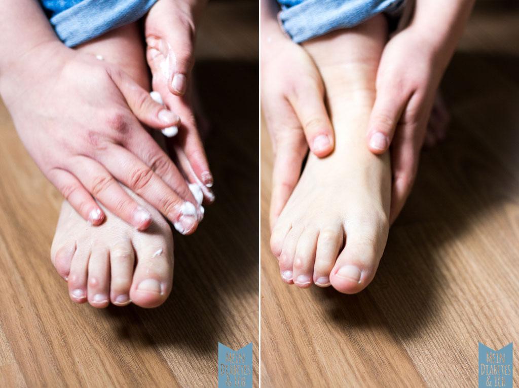 Fußpflege bei Diabetes - einmal eincremen bitte